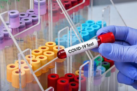 Ayeri 72 casos positivos de coronavirus